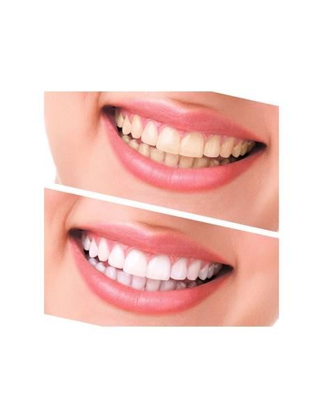 produit blanchiment dentaire