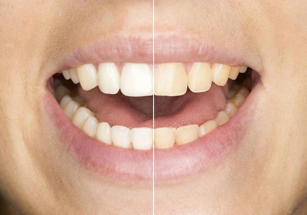 blanchiment dentaire naturel