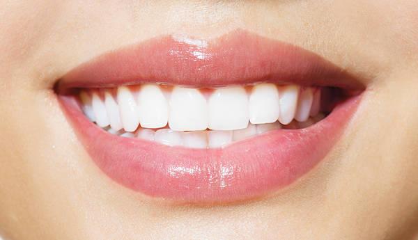 dentiste blanchiment dentaire prix