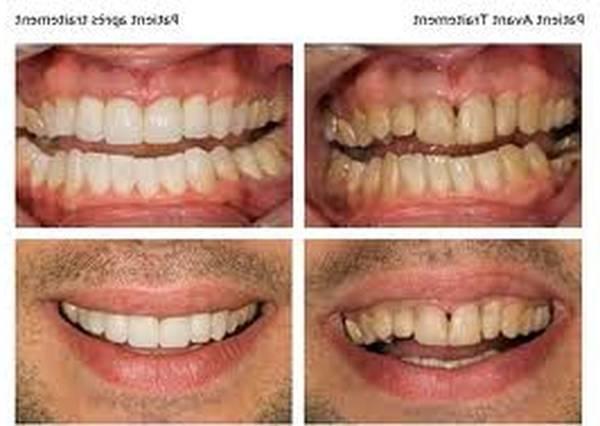 meilleur kit de blanchiment dentaire