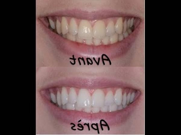strip blanchiment dentaire