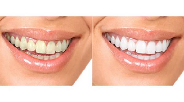 blanchiment dentaire chez dentiste