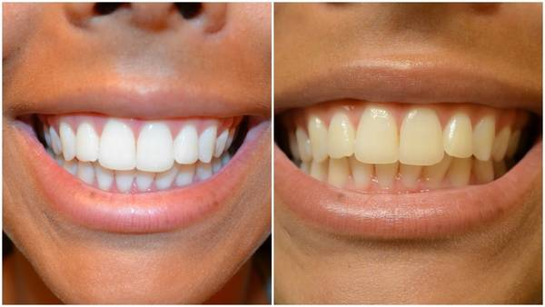 blanchiment dentaire avec peroxyde