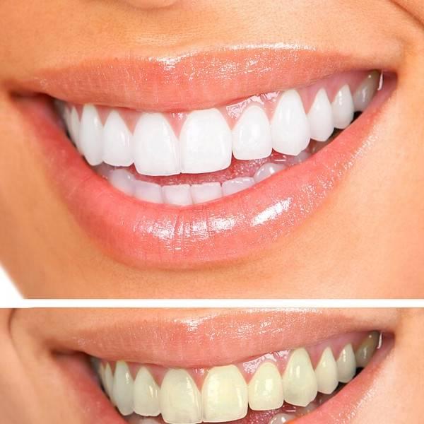 gouttiere pour blanchiment dentaire