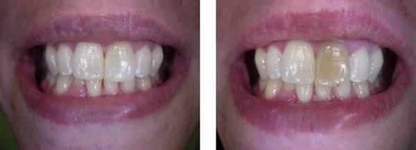 appareil blanchiment dentaire professionnel