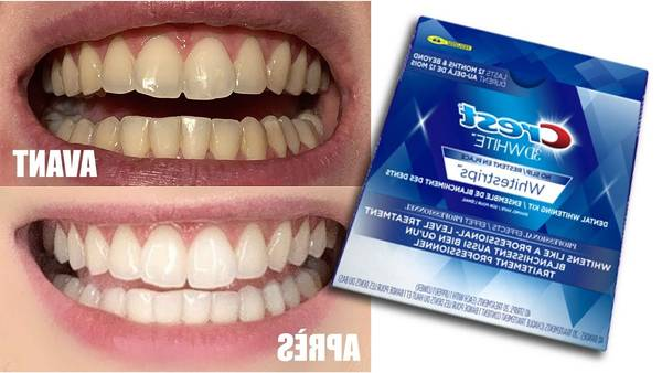 pharmacie blanchiment dentaire