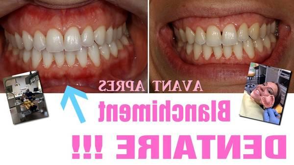 blanchiment dentaire gratuit