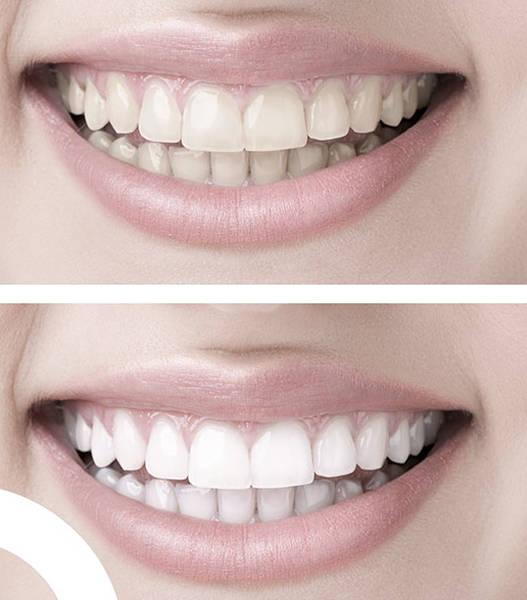 kit de blanchiment dentaire white pro