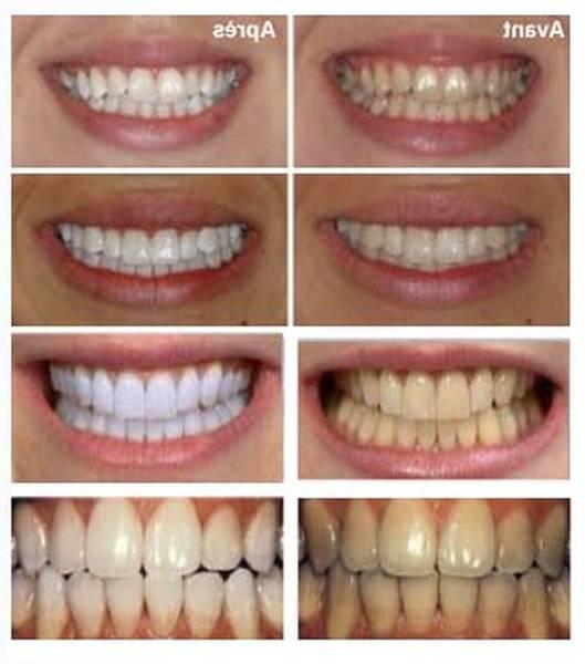tarif blanchiment dentaire
