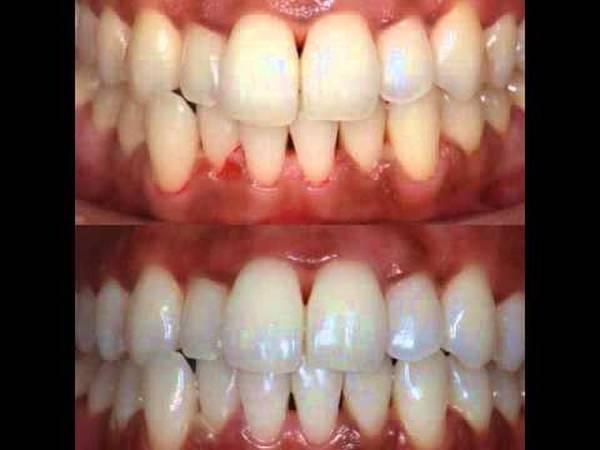 gel de blanchiment dentaire