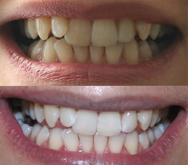 gouttière dentaire blanchiment