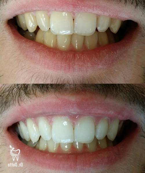 kit de blanchiment dentaire white care