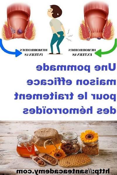 hemorroide externe traitement naturel